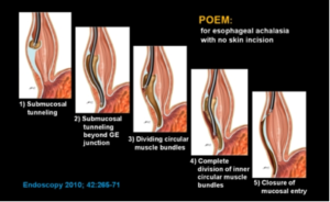 Per-Oral Endoscopic Myotomy